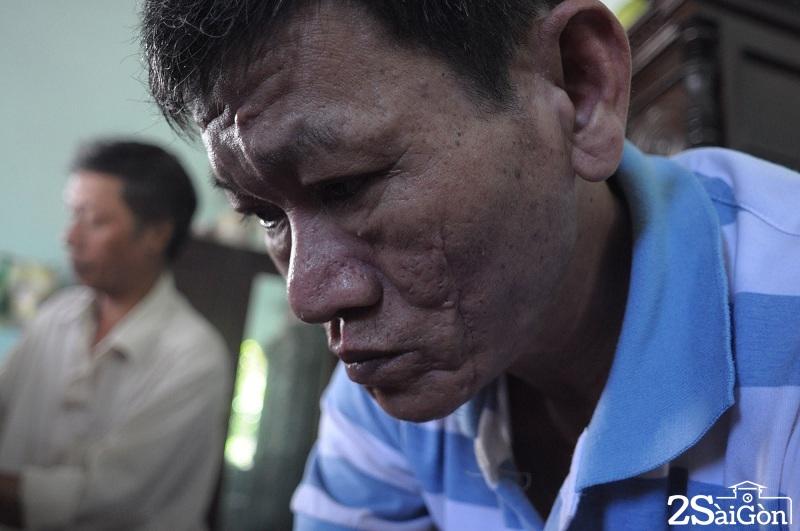 Người thương binh hơn 30 năm chữa bệnh miễn phí ở Sài Gòn 13
