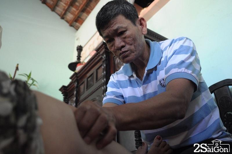 Người thương binh hơn 30 năm chữa bệnh miễn phí ở Sài Gòn 3