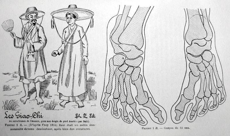 """Một tài liệu cổ thời Pháp nghiên cứu vấn đề Giao Chỉ, hình vẽ xương bàn chân của một bé trai 12 tuổi. Bàn chân Giao Chỉ là đặc điểm người Việt bản địa. Số lượng người mang đặc điểm bàn chân này ngay từ xưa chỉ là số ít, không phải người An Nam nào cũng có bàn chân Giao Chỉ, cho đến nay thì còn rất hiếm…. """"Giao Chỉ là người Nam di, ngón chân cái toạc ra, đứng thẳng hai bàn chân thì ngón chân cái giao vào nhau, cho nên gọi là Giao Chỉ (chỉ là ngón chân cái)"""". (Ảnh: Internet)  Theo Tinh hoa.net"""