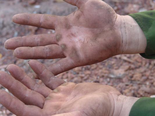 Đôi bàn tay chai sần của nhân công bứng mai.