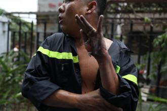 Toàn bộ phần da tay của người chiến sĩ trẻ bị bỏng lửa trong quá trình chữa cháy khiến ai cũng xót xa. Ảnh: VTV24